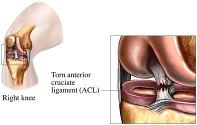 ACL-Tear