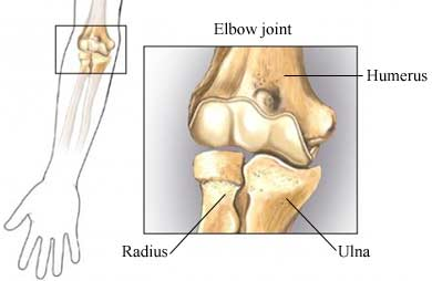 Elbow-Fracture