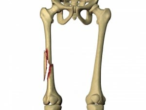 Femoral-Fracture-300x225