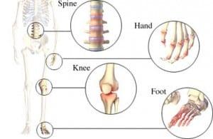 Osteoarthritis-general-300x195