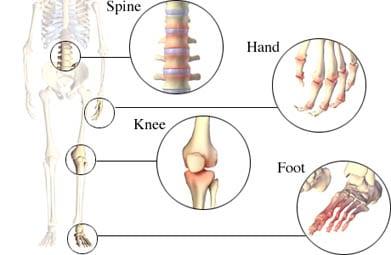 Osteoarthritis-general