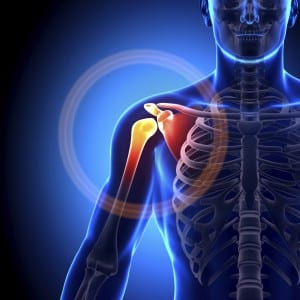 Osteoarthritis-of-Shoulder-Ours-300x300
