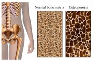 Osteoporosis-300x195