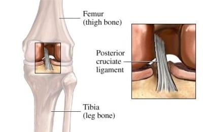 Posterior-Cruciate-Ligament