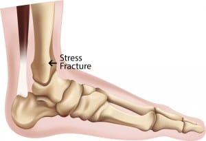 Stress-Fracture-Ankle-300x205