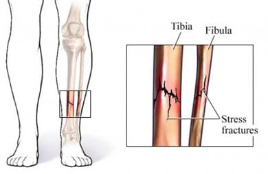 shin splints star physical therapy tennessee tn Anterior Tibia Fracture shin splints