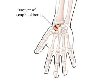 Wrist-Fracture1