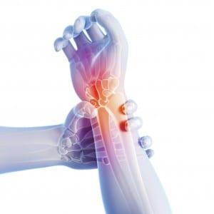 Wrist-Tendonitis-300x300